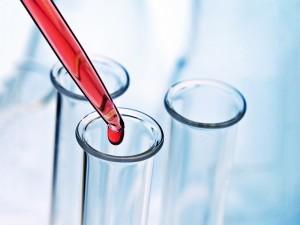 Jakie badania krwi należy robić na czczo?