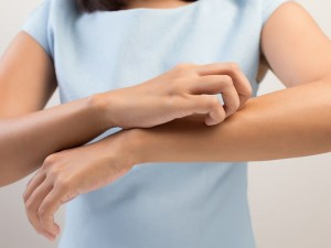 Jakie są objawy popromiennego zapalenia skóry?