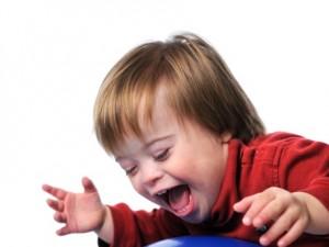 Jakie są skutki otyłości u dzieci z zespołem Downa?
