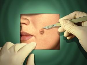 Kiedy znamię jest objawem czerniaka, czyli jak rozpoznać nowotwór skóry?