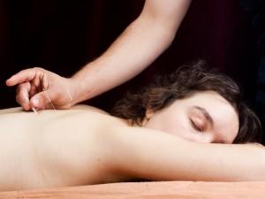 Kto może być akupunkturzystą?