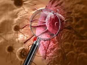 Leczenie dopasowane idealnie do nowotworu? Powstała strona, która wyjaśnia działanie medycyny personalizowanej