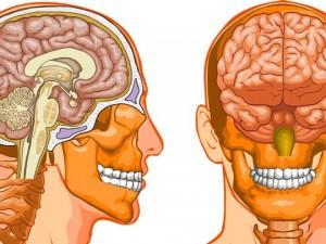 Neuralgia Arnolda – ból z tyłu głowy