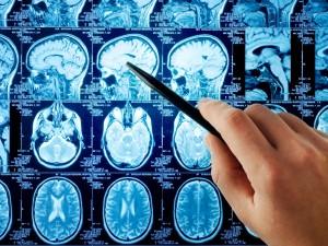 Promieniowanie z tomografii naraża dzieci na raka mózgu!