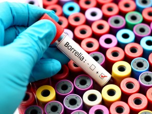 Testy, które pomogą ci wykryć boreliozę