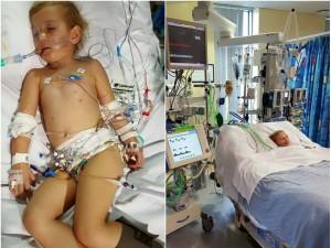 To zakażenie może zabić w ciągu kilkunastu godzin i zagraża szczególnie dzieciom. Jak je rozpoznać?