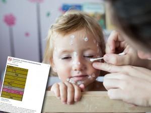To zdjęcie udowadnia, że warto szczepić dzieci przeciwko ospie wietrznej!