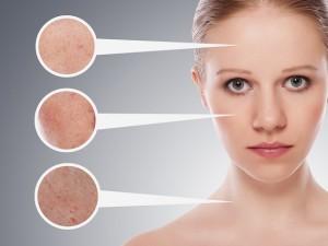 Wpływ psychiki na choroby skóry