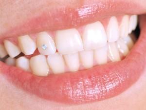 Wybielanie zębów krok po kroku