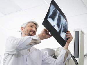 Zapalenie płuc może rozwijać się skrycie!