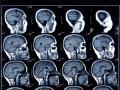 Skanowanie mózgu pomoże przewidzieć Alzheimera