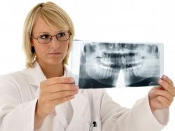 Ankyloza – groźny zrost zębów, zesztywnienie stawu