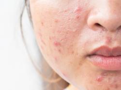 Bezskutecznie walczysz z trądzikiem? Poznaj 4 choroby, które mogą być przyczyną problemów z cerą!