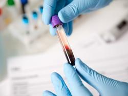 Hormon, lek i niebezpieczny środek dopingujący w jednym. Jak działa erytropoetyna?