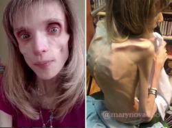 Jej ciało to skóra i kości. Cierpiąca na anoreksję 26-latka waży jedynie 17 kilogramów. Jej stan jest krytyczny