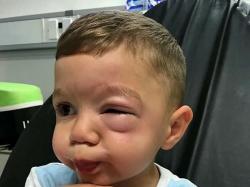Po wizycie w Lidlu chłopiec tak spuchł na twarzy, że nie widział na jedno oko. Matka obwinia sklep