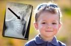Wiecie co to? To szokujące zdjęcie rentgenowskie ma przestrzec rodziców małych dzieci!