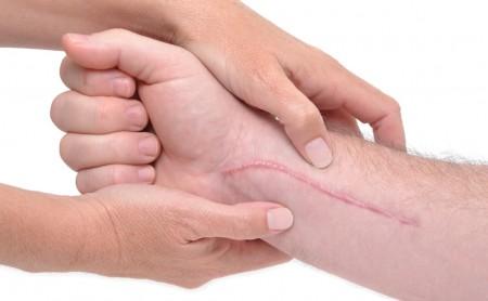 3 rodzaje blizn i 3 sposoby ich leczenia