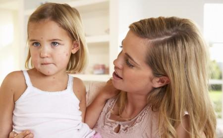 Wzrost zachorowań na ospę u dzieci