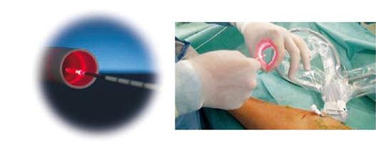 Laserowa operacja żylaków