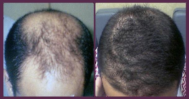 Na Czym Polega Transplantacja Włosów Fryzury Polkipl