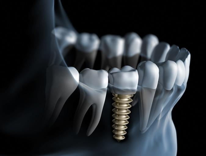 Что должно нас беспокоить после имплантации?