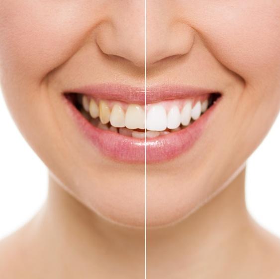 Как избавиться от зубного камня?