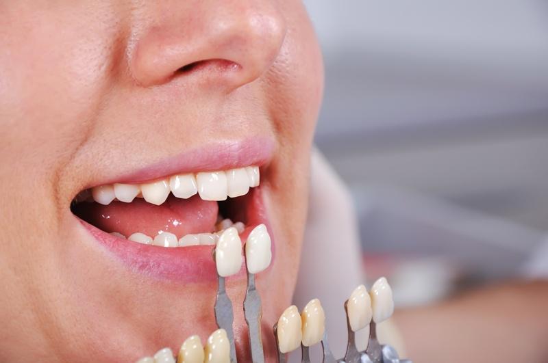 Последствия потери зуба