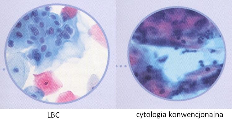 Cytologia LBC i cytologia konwencjonalna