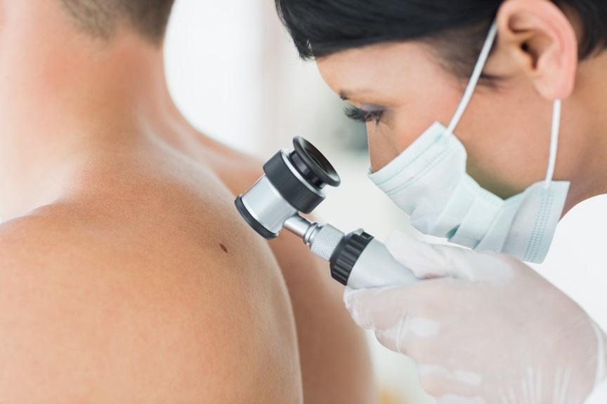 Как узнать, что это рак кожи?