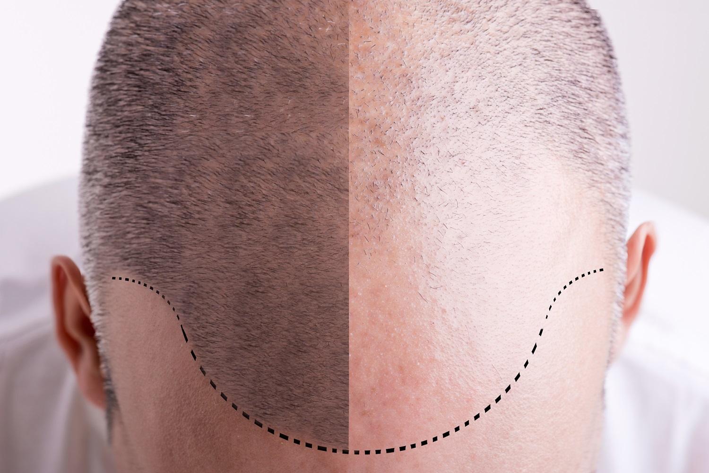 mezoterapia igłowa na wypadanie włosów