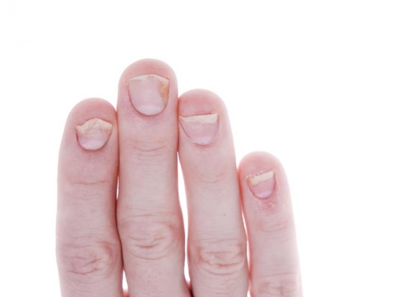 Onycholiza – od urazu do choroby paznokcia