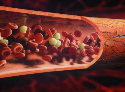 Z forum medycznego: za mało limfocytów – czy to białaczka?