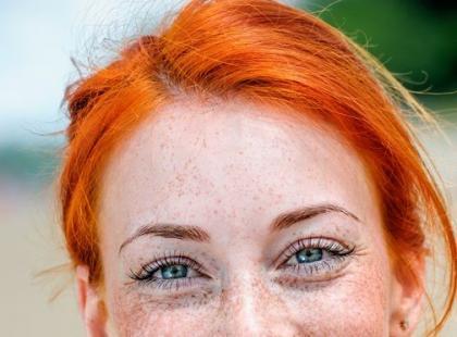 """""""Ukryty"""" gen rudych włosów zwiększa ryzyko czerniaka"""