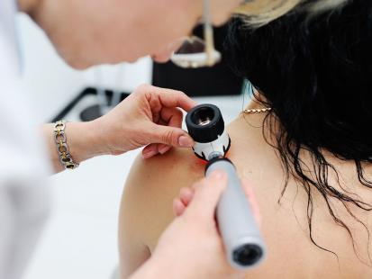 Jak rozpoznać, czy znamię może być czerniakiem? Zastosuj sposób dermatologów!