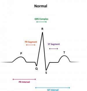 EKG Befund in 7 Schritten Online Medizin lernen mit