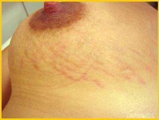 Przed karboksyterapią. Fot. Derma Plus