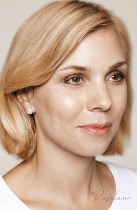 Restylane Skinboosters – pacjentka przed zabiegiem, fot. Galderma Polska