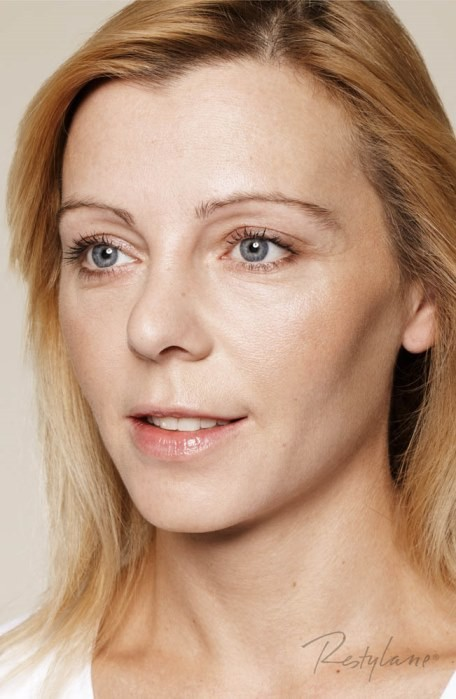 Restylane Skinboosters – pacjentka po zabiegu, fot. Galderma Polska