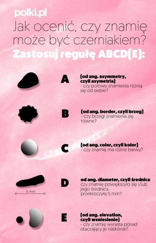 Infografika - jak rozpoznać czerniaka