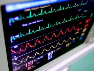 Jak odczytać wyniki EKG