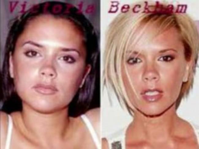 Victoria Beckham, makijaż, fryzury, operacje plastyczne gwiazd