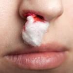 Uraz nosa – jak postępować?