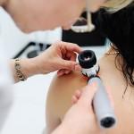 Badanie pieprzyków u dermatologa