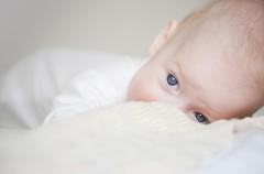 Alergie u dzieci - konieczność czy uciążliwa przypadłość?