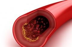 Sposoby na wysoki cholesterol