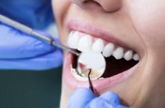 Jak uniknąć próchnicy zębów?