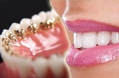 Niewidoczne aparaty na zęby - ceny