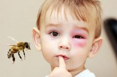 Użądlenie, anafilaksja i wstrząs anafilaktyczny