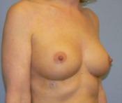 Pełniejszy biust bez operacji i implantów
